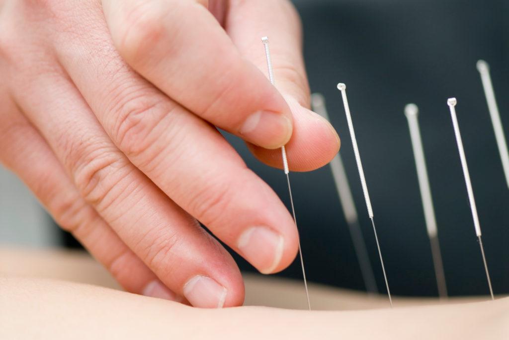 Akupunktur bei Übelkeit in der Schwangerschaft